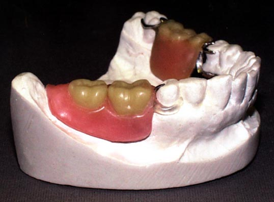 Flexite Pre Formed Dental Clasps For Partial Dentures