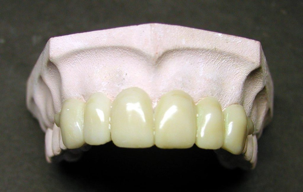 This image has an empty alt attribute; its file name is ProvisionalSplints-3-1024x649.jpg